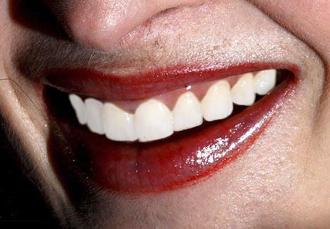 Blanquear dientes 2